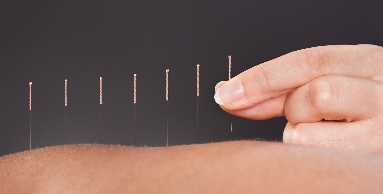 Acupuncture And How It Can Help You